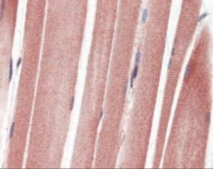 Human skeletal muscle tissue stained with IGF1R Antibody, alkaline phosphatase-streptavidin and chromogen.