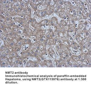 Anti-NMT2 Rabbit Polyclonal Antibody