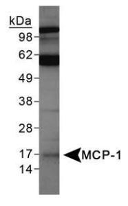 Anti-SNX27 Rabbit Polyclonal Antibody (DyLight 488)