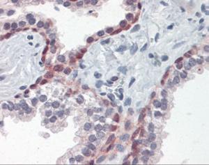Human prostate tissue stained with HSF1 Antibody at 15 ug/mL followed by biotinylated anti-mouse IgG secondary antibody, alkaline phosphatase-streptavidin and chromogen.