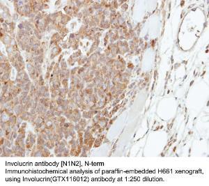 Anti-KLF16 Rabbit Polyclonal Antibody