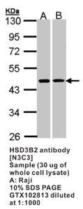 Anti-HSD3B2 Rabbit Polyclonal Antibody