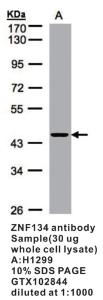 Anti-PFN1 Rabbit Polyclonal Antibody