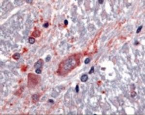 Immunohistochemistry staining of SLC5A3 in spinal cord tissue using SLC5A3 Antibody.