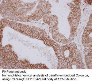 Anti-PNPASE Rabbit Polyclonal Antibody