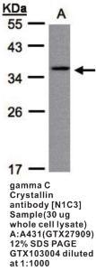 Anti-PAICS Rabbit Polyclonal Antibody