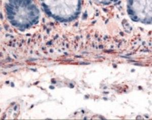 Immunohistochemistry staining of ADRA1B in smooth muscle cells using ADRA1B Antibody.