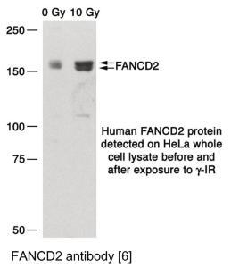 Anti-FANCD2 Mouse Monoclonal Antibody [clone: 6]