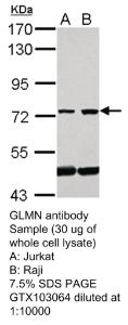 Anti-HNF6 Rabbit Polyclonal Antibody
