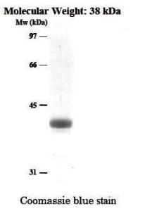 Cysteine Protease