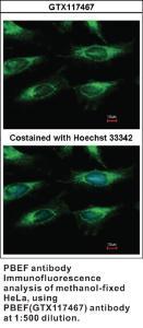 Anti-PBEF Rabbit Polyclonal Antibody