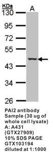 Anti-PAI2 Rabbit Polyclonal Antibody
