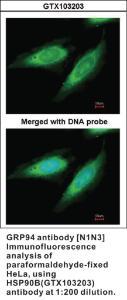 Anti-HSP90AB1 Rabbit Polyclonal Antibody