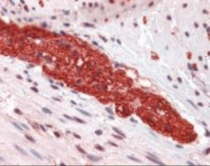 Immunohistochemistry staining of GRM5 in colon, myenteric plexus tissue using GRM5 Antibody.