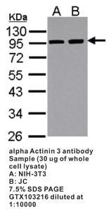 Anti-NSMCE2 Rabbit Polyclonal Antibody