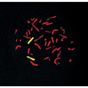 Human chromosome 6 paint detected with FITC-labeled probe (yellow) and mounted with VECTASHIELD Mounting Medium with PI (red) Photo courtesy of Cytocell Ltd.