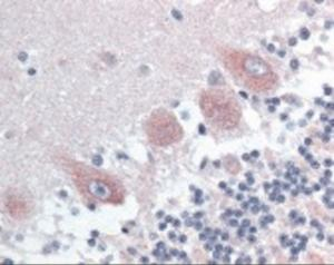Immunohistochemistry staining of CAM Kinase 2 alpha in cerebellum tissue using CAM Kinase 2 alpha Antibody.