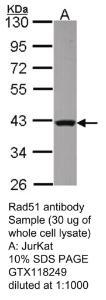 Anti-RAD51 Rabbit Polyclonal Antibody