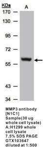 Anti-MMP3 Rabbit Polyclonal Antibody