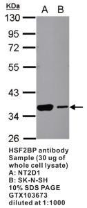 Anti-MICAL1 Rabbit Polyclonal Antibody
