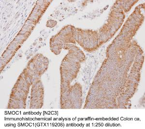 Anti-SMOC1 Rabbit Polyclonal Antibody