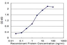 Anti-RBM6 Mouse Monoclonal Antibody [clone: 3000000000]