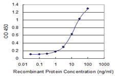 Anti-RBM6 Mouse Monoclonal Antibody [clone: 4B3]