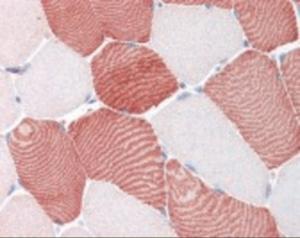 Immunohistochemistry staining of NFKBIA in skeletal muscle tissue using NFKBIA Antibody.