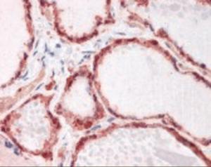 Immunohistochemistry staining of GSTP1 in thyroid tissue using GSTP1 monoclonal Antibody.