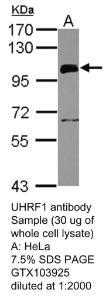Anti-LTA4H Rabbit Polyclonal Antibody