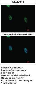 Anti-LIN7B Rabbit Polyclonal Antibody