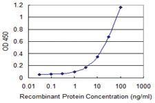 Anti-PRMT3 Mouse Monoclonal Antibody [clone: 3G4]