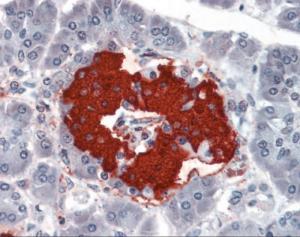 Human pancreas tissue stained with INS Antibody at 10 ug/mL followed by biotinylated anti-mouse IgG secondary antibody, alkaline phosphatase-streptavidin and chromogen.