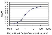 Anti-MPHOSPH10 Mouse Monoclonal Antibody [clone: 1B10]
