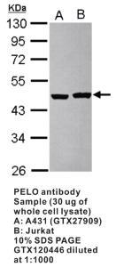 Anti-PELO Rabbit Polyclonal Antibody