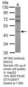 Anti-AP1M2 Rabbit Polyclonal Antibody