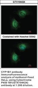 Anti-CYP1B1 Rabbit Polyclonal Antibody