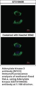 Anti-ADCY3 Rabbit Polyclonal Antibody