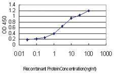 Anti-TOPORS (topoisomerase I binding, arginine/serine-rich, E3 ubiquitin Protein ligase) Mouse Monoclonal Antibody [clone: 5G11]