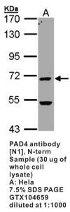 Anti-PAD4 Rabbit Polyclonal Antibody