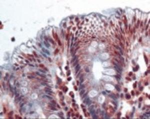 Immunohistochemistry staining of AKR1B10 in colon tissue using AKR1B10 Antibody.