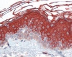 Immunohistochemistry staining of ALAS1 in skin formlin-fixed paraffin-embedded) tissue using ALAS1 Antibody.