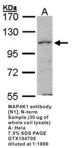 Anti-HDAC10 Rabbit Polyclonal Antibody