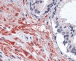 Immunohistochemistry staining of BIRC2 in prostate tissue using BIRC2 Antibody.