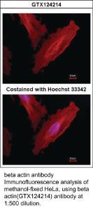 Anti-ACTB Rabbit Polyclonal Antibody