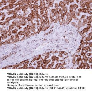 Anti-VDAC2 Rabbit Polyclonal Antibody