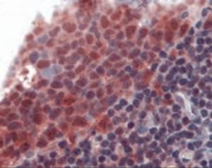 Immunohistochemistry staining of TNFSF13B in tonsil tissue using TNFSF13B Antibody.