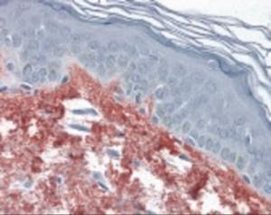 Immunohistochemistry staining of in skin tissue using Antibody.