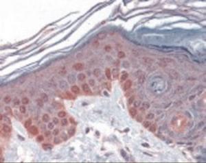 Immunohistochemistry staining of Cyclin T1 in skin tissue using Cyclin T1 Antibody.