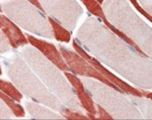 Immunohistochemistry staining of USP7 in skeletal muscle tissue using USP7 Antibody.